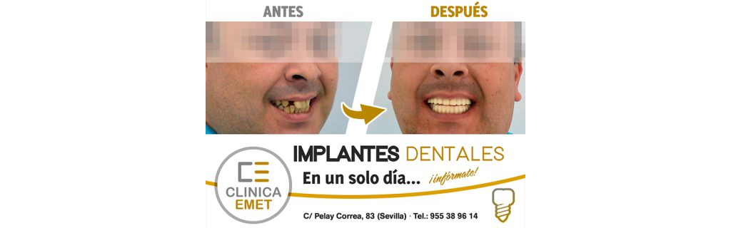 slider_implantes_un_dia