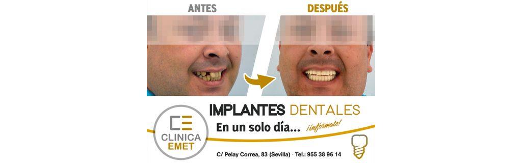 slider_implantes_un_dia