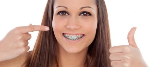 Ortodoncia en adultos: nunca es tarde para lucir sonrisa