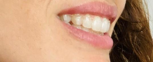 Ortodoncia invisible: todo lo que debes saber para decidirte