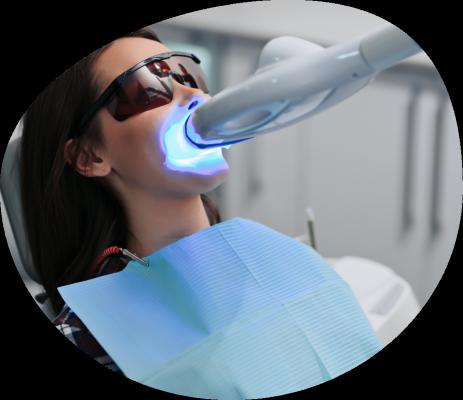 Blanqueamiento Dental en Triana