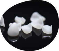 Carillas Dentales en Triana