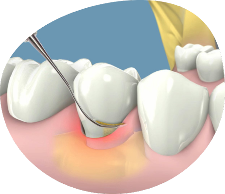 Endodoncia en Triana