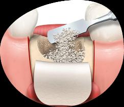 implantes dentales en Triana