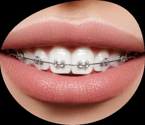 Ortodoncia con Brackets en Triana
