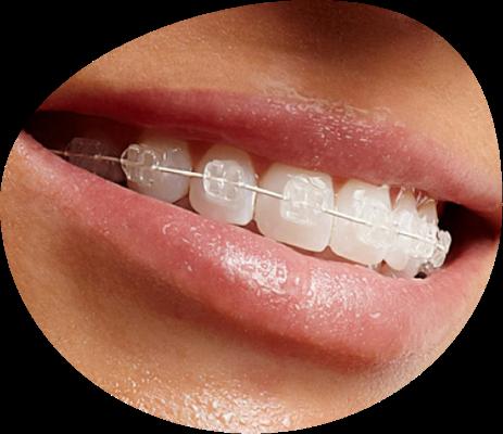 Ortodoncia estética en Triana